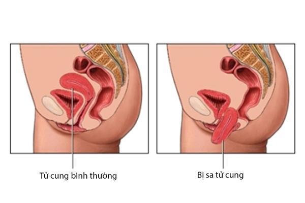 sa-tu-cung-khi-mang-thai
