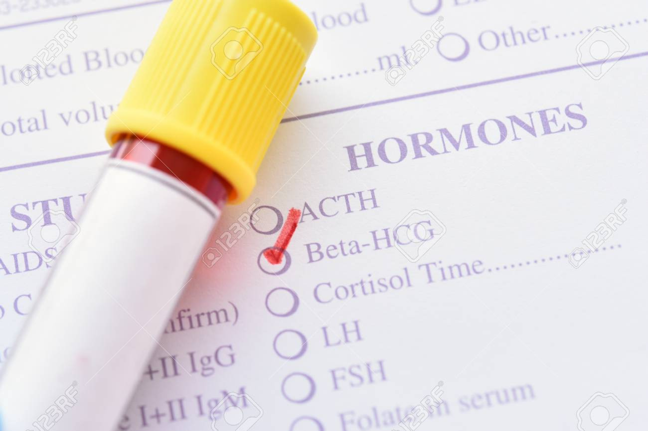Xét nghiệm beta HCG giúp mẹ bầu xác định tuổi thai