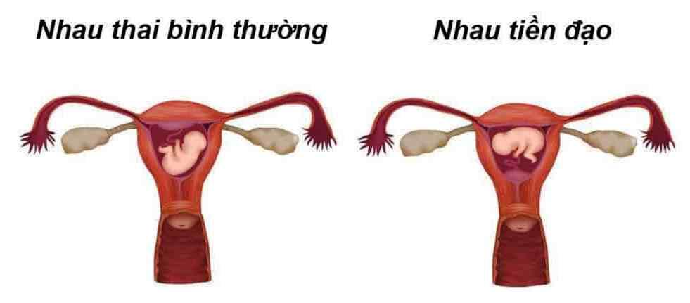 Hình ảnh so sánh rau (nhau) thai bình thường và rau thai tiền đạo