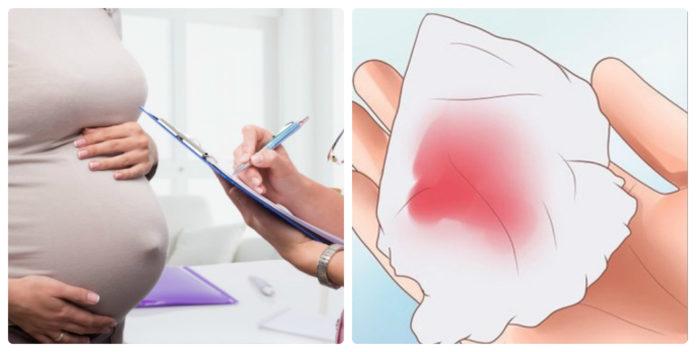 Ra huyết hồng nhưng không đau bụng có nguy hiểm không?